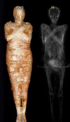 66 - شاهد أول مومياء مصرية حامل