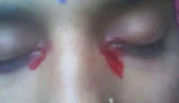 8 8 - فتاة تبكي دموعاً من دم في حالة نادرة